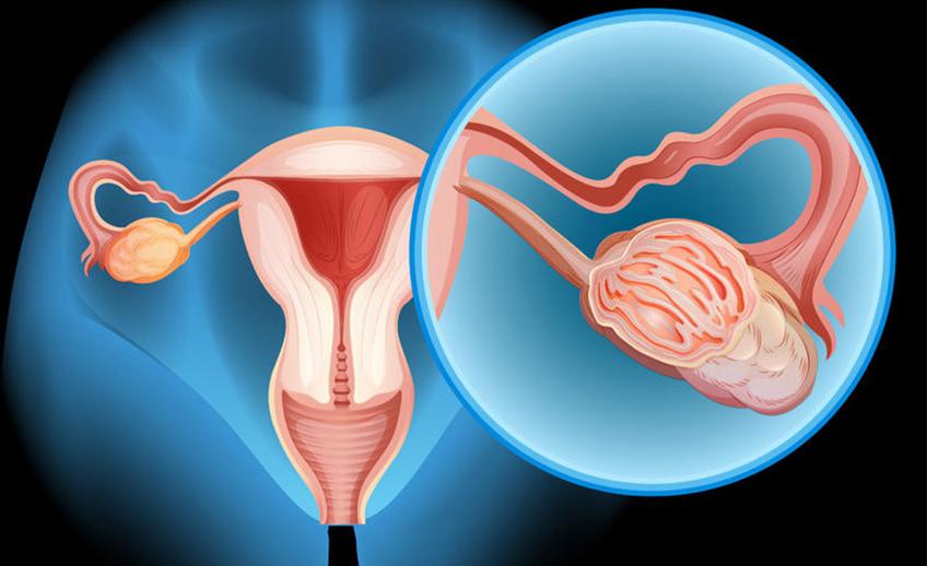שחלות פוליציסטיות - polycystic ovaries