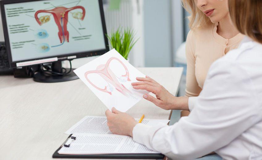 שרירנים - מיומות - fibroids